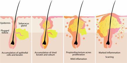 Ilustracija izgleda kože i stvaranja akni