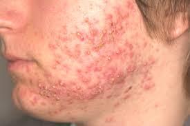 Izražen oblik akni - tretman dermatologa
