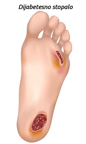 Dijabetesno stopalo