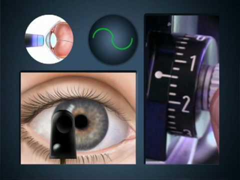Aplaciona tonometrija - merenje očnog pritiska