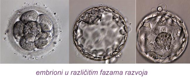 Zamrzavanje embriona