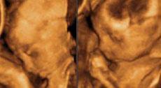27 nedelja trudnoće