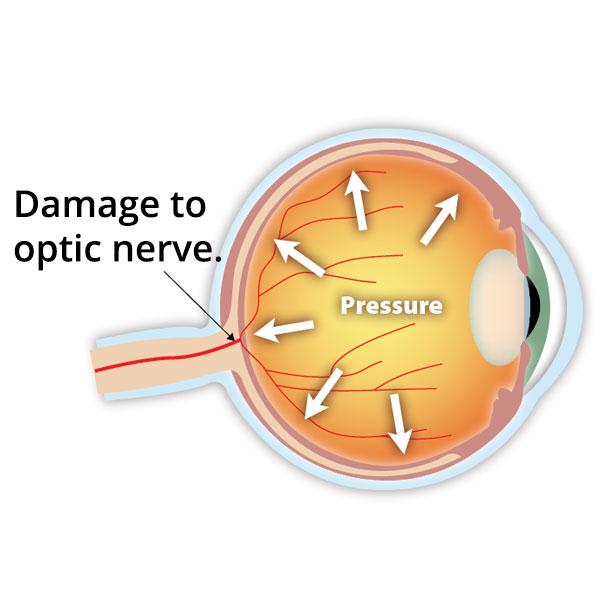 Glaukom - ocni pritisak, operacije i lečenje
