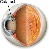 Izgled katarakte